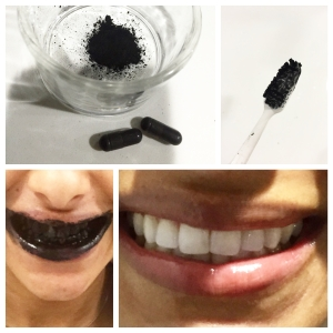 Whitening my teeth with activated charcoal